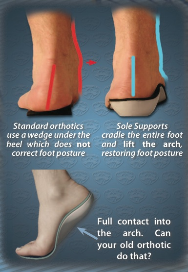 Sole Suports custom foot orthotics Salt Lake City